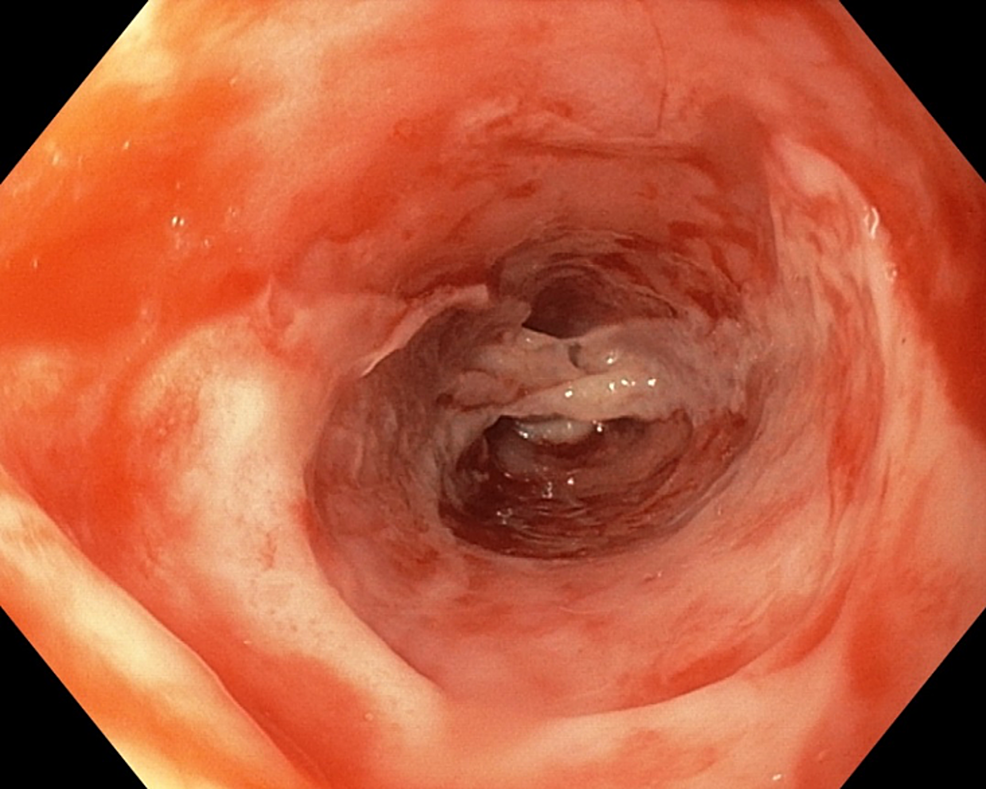 Image-showing-entire-esophageal-involvement-on-upper-endoscopy