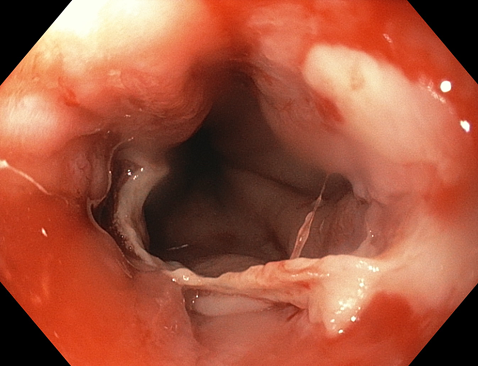 Image-showing-sloughing-of-several-fragments-of-mucosa-on-upper-endoscopy