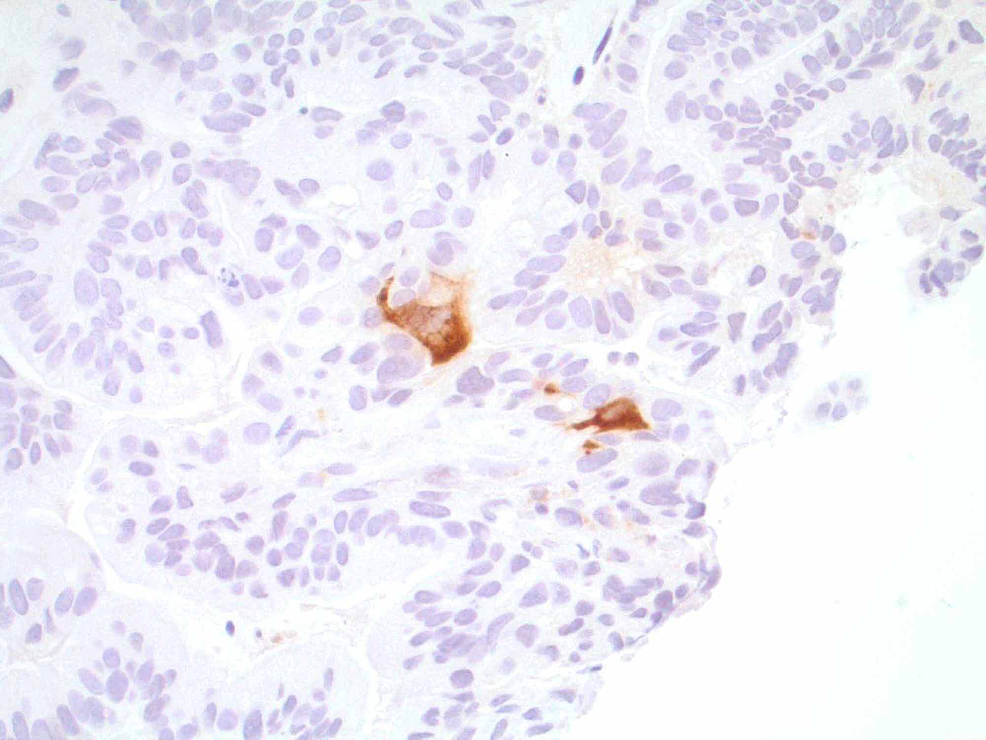 Cytoplasmic-stained-cells-with-antibody-to-beta-hCG-antigen,-suggesting-a-choriocarcinoma