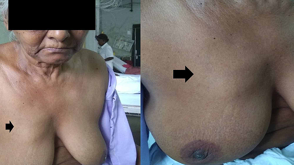 Clinical-picture-of-solitary-right-breast-mass-(upper-inner-quadrant---black-arrow).