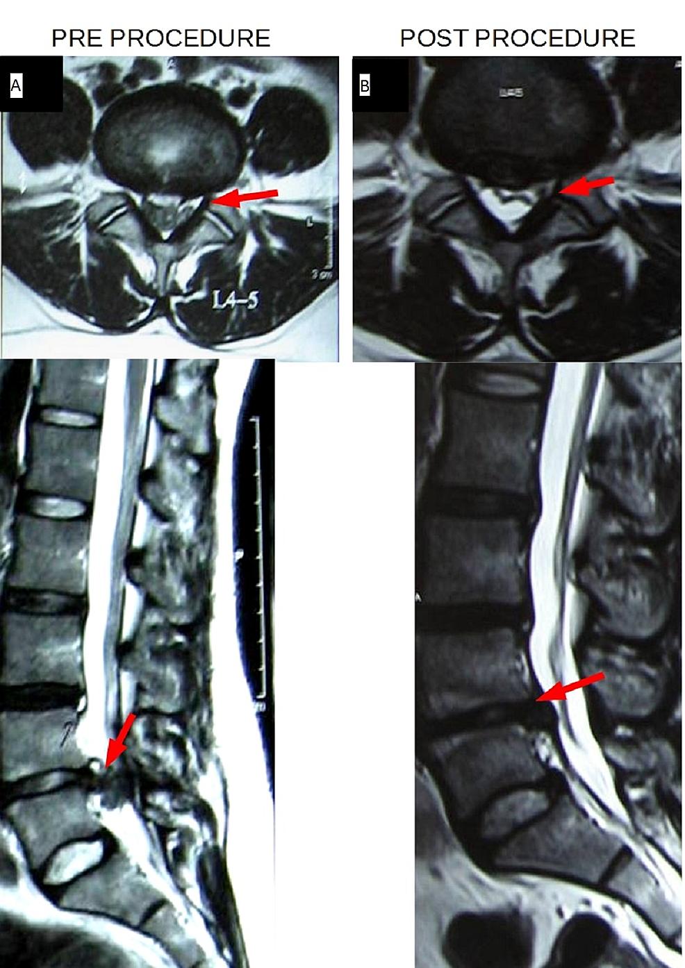 Pre-Procedure-(A)-vs.-Post-Procedure-(B)-Axial-and-Sagittal-T2W-Images