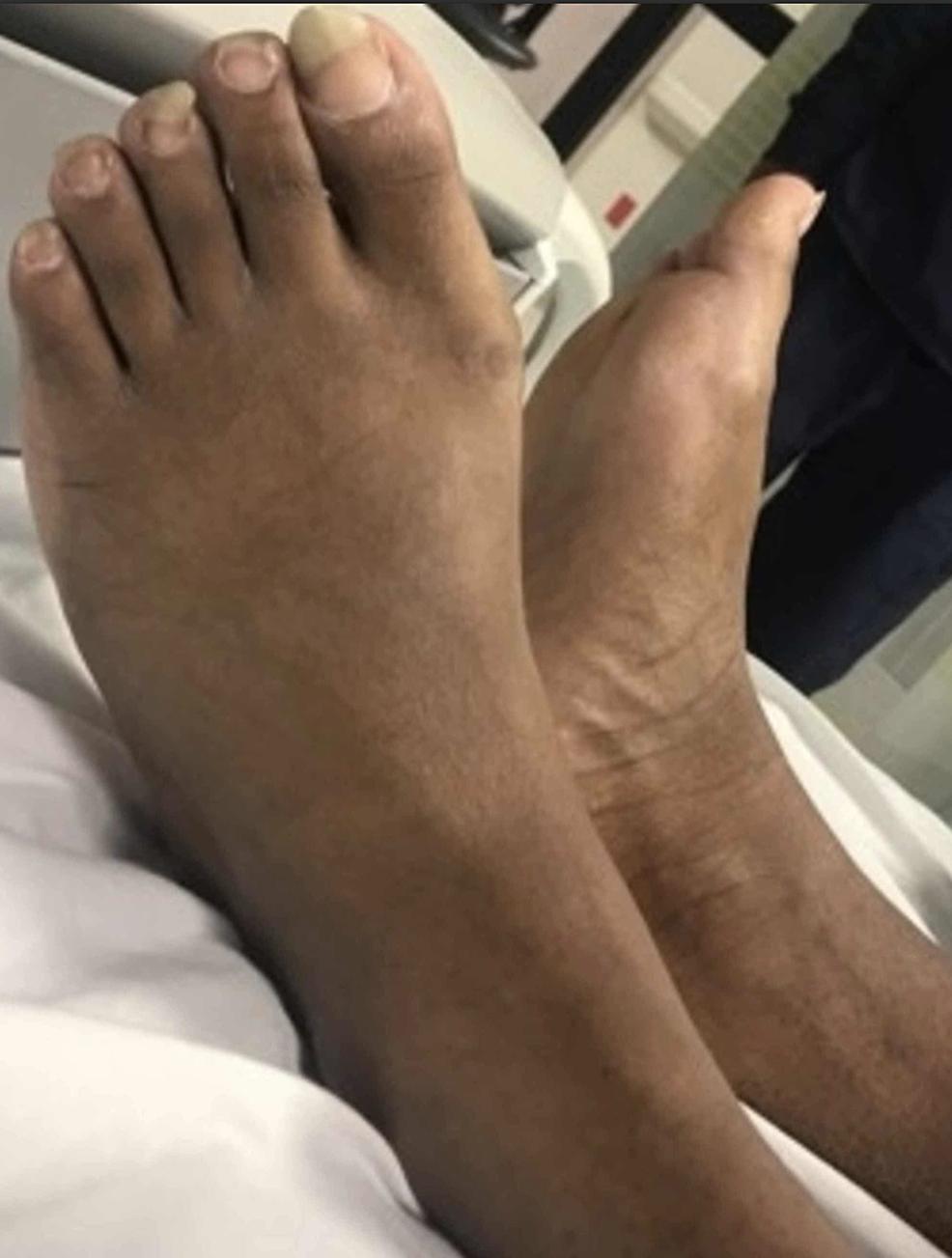 Dorsum-of-the-feet-(anatomically-normal)