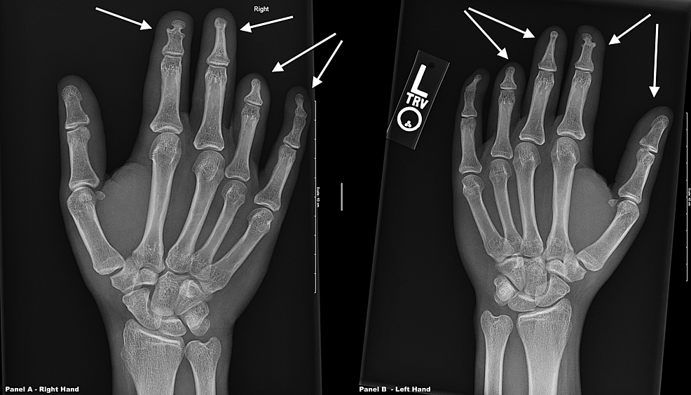 X-rays-of-both-hands