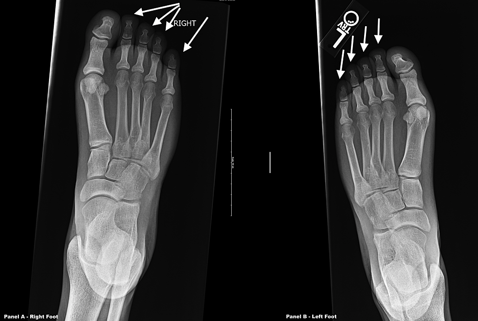 X-rays-of-both-feet