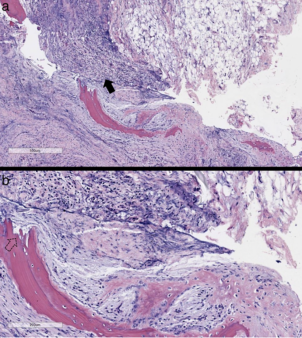 Biopsy-of-epidural-phlegmon-with-bone-fragments
