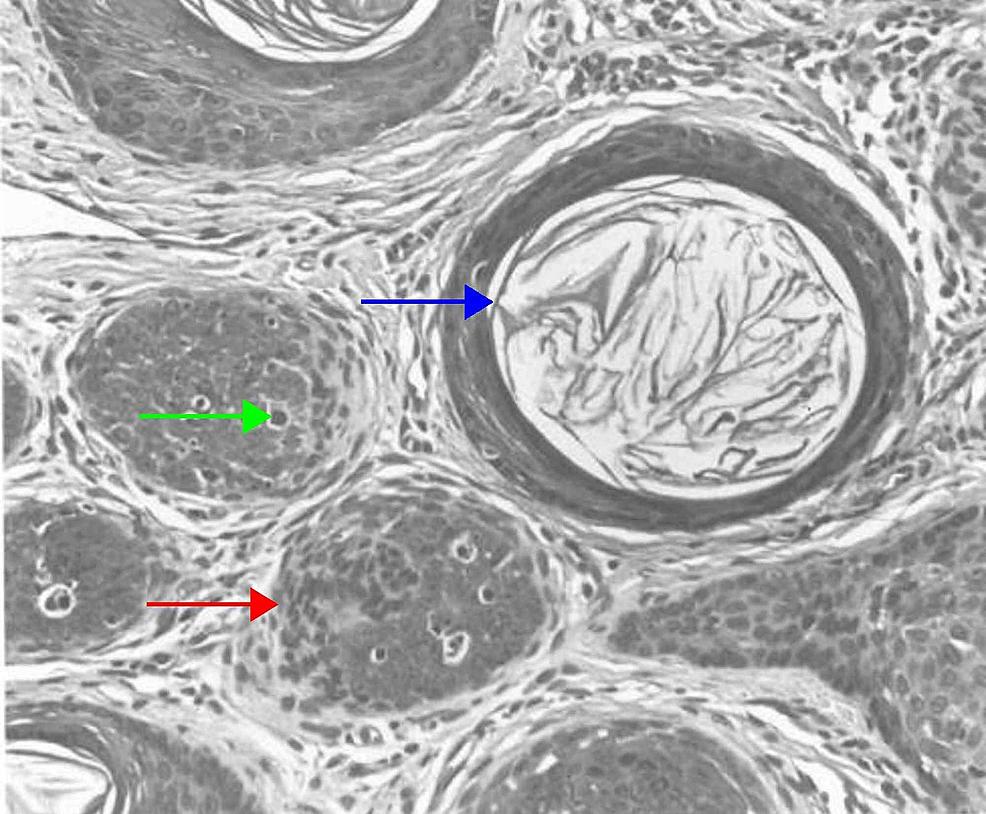 Nodular-(large)trichoblastoma