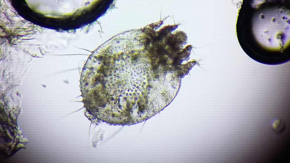 An-adult-mite-as-viewed-after-a-simple-saline-wet-mount