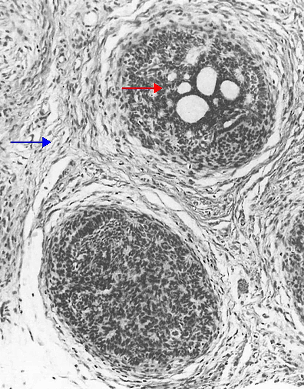 Cribriform-(trichoepithelioma)-trichoblastoma