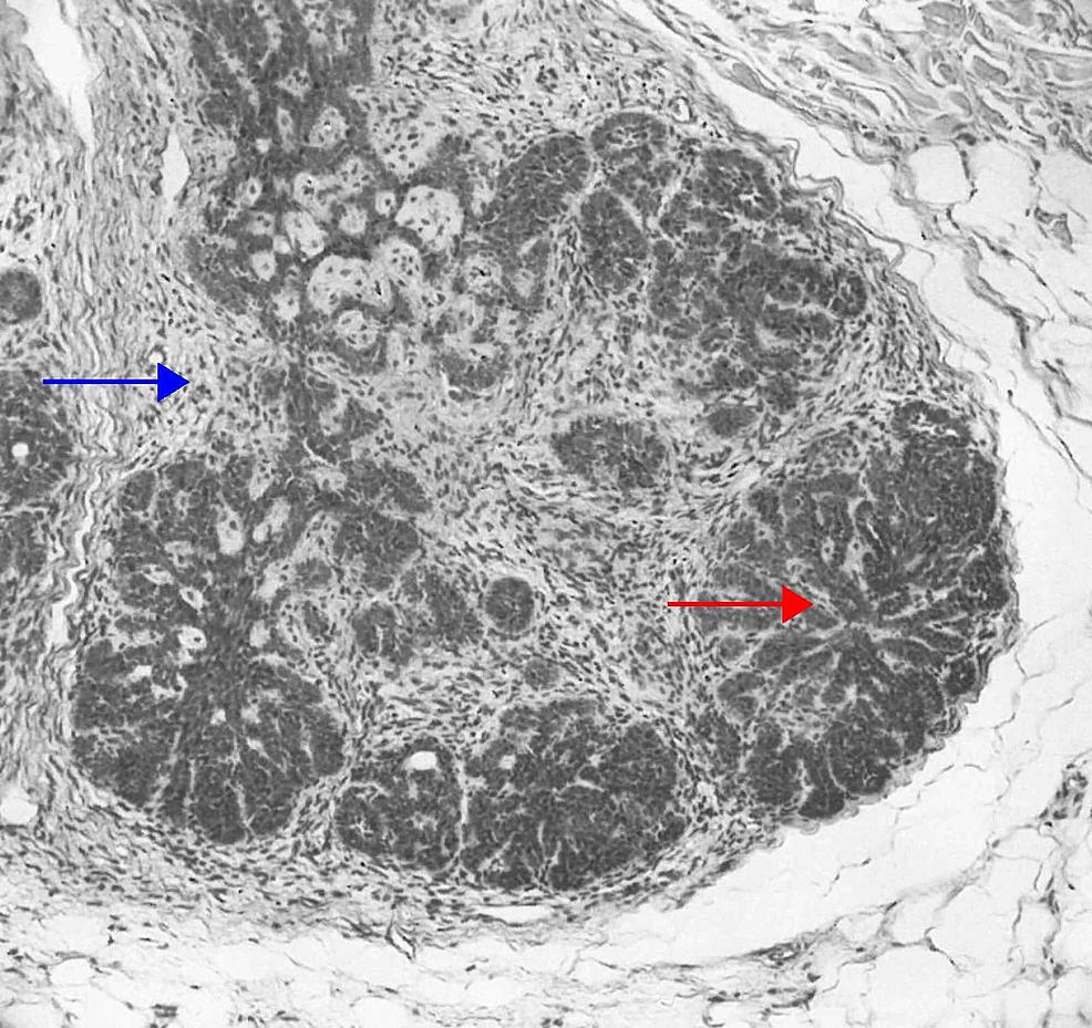 Racemiformtrichoblastoma