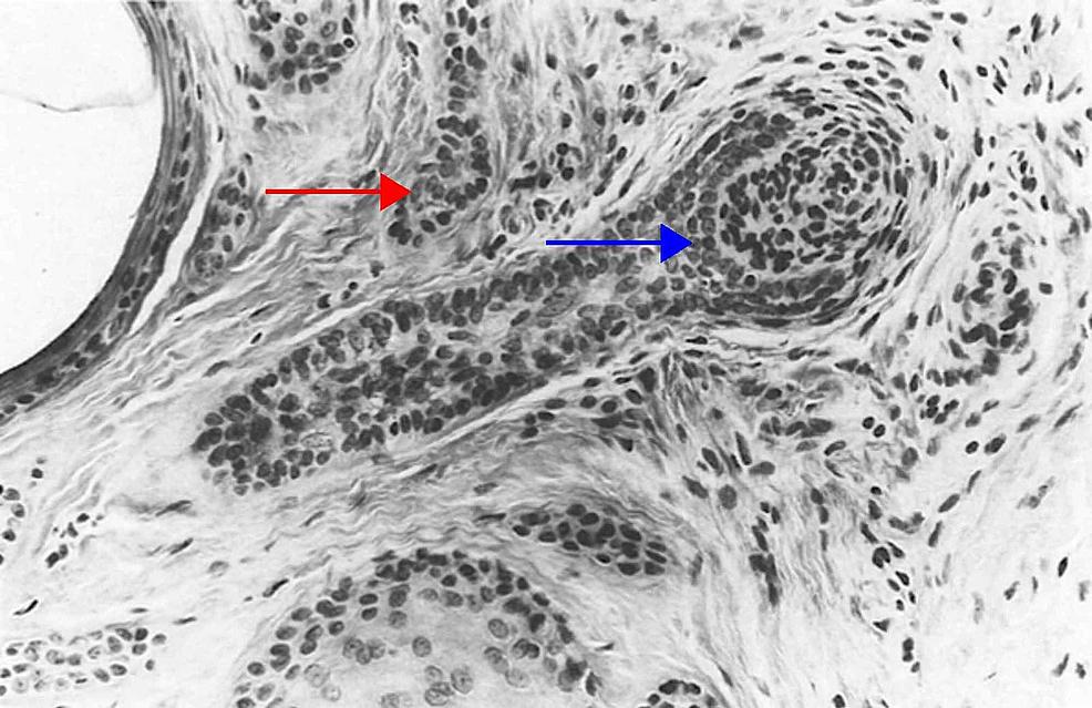Columnar-trichoblastoma-(desmoplastic-trichoepithelioma)