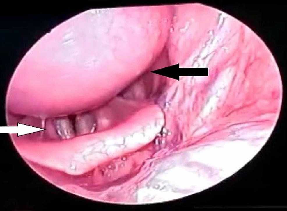 70°-rigid-endoscopy-revealing-the-pharyngeal-bulge-(black-arrow)-extending-till-supraglottis-(white-arrow)
