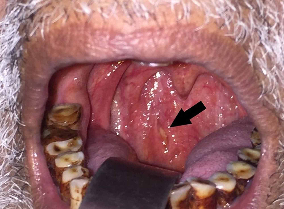 Examination-of-the-oral-cavity-after-drainage-of-pus.-The-site-of-incision-has-been-marked-with-a-black-arrow