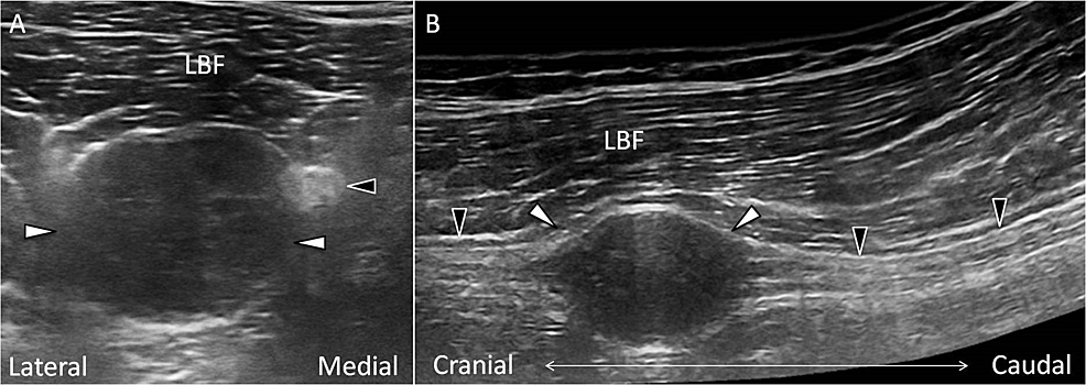 Ultrasonography-of-the-sciatic-schwannoma