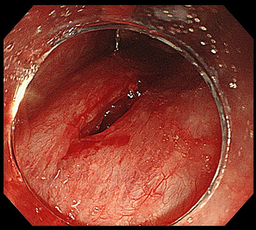 Overtube-induced-laceration-in-the-posterior-wall-of-the-oropharynx