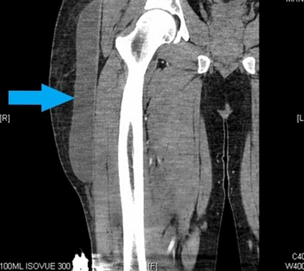CT-with-IV-contrast-right-lower-extremity-(coronal-view)-with-a-fluid-collection-within-the-deep-aspect-of-the-subcutaneous-soft-tissues