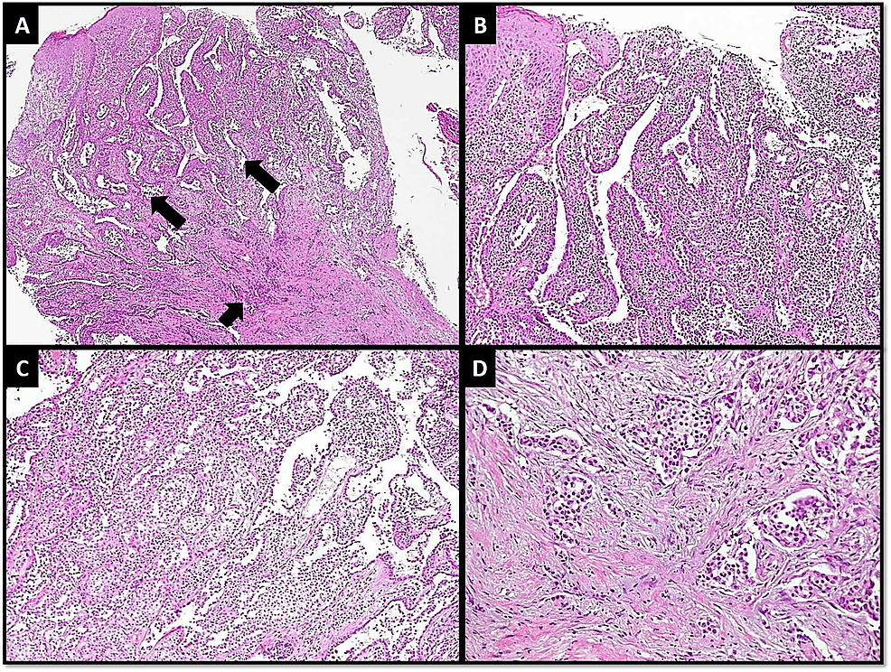 (A)-Low-power-view-of-tumor-showing-features-of-nipple-superficially-(larger-arrows)-and-invasive-carcinoma-at-deeper-aspect-(shorter-arrow).-(B)-Papillomatous-pattern-in-NA.-(C)-Hyperplastic-changes-in-NA.-(D)-Nest-and-tubules-of-invasive-carcinoma.