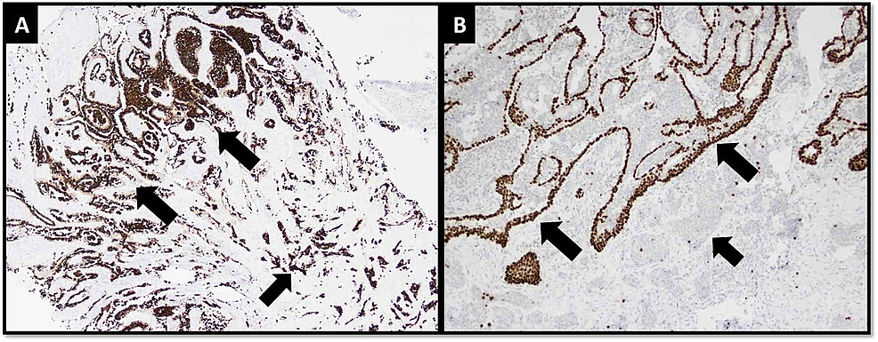 IHC-stains.-(A)-Cytokeratin-CAM5.2-highlights-papillomatous-and-hyperplastic-nature-of-NA-superficially-(larger-arrows)-and-infiltrative-pattern-of-carcinoma-at-deeper-aspect-(short-arrow).-(B)-p63-highlights-intact-myoepithelial-cell-layer-around-ducts-of-NA-(larger-arrows)-and-loss-of-myoepithelial-cell-layer-around-invasive-carcinoma-(short-arrow).