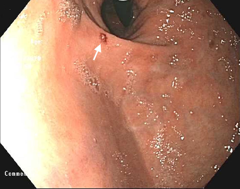 Endoscopic-retroflexed-view-of-a-Dieulafoy-lesion-(arrow)-and-hiatal-hernia