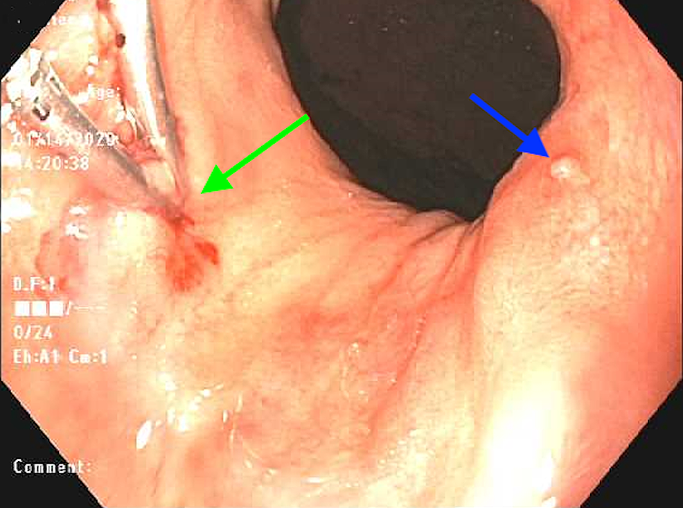 Endoscopic-view-of-a-Dieulafoy-lesion-to-which-two-hemostatic-clips-have-been-applied-(green-arrow).-Evidence-of-a-third-Dieulafoy-lesion-(blue-arrow)