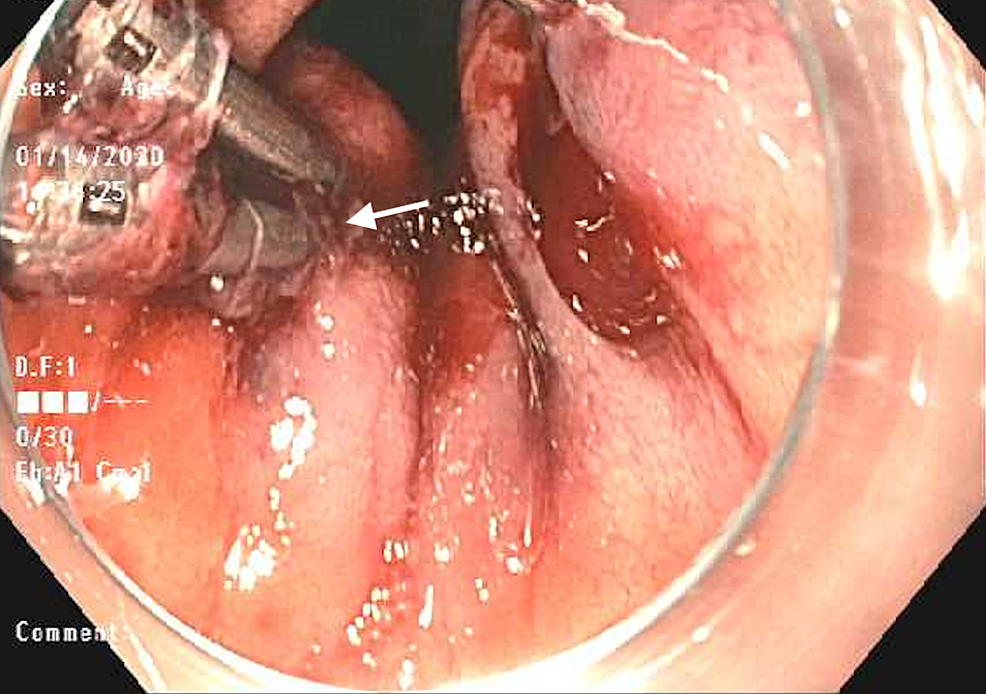 Endoscopic-view-of-hemoclips-applied-to-two-Dieulafoy-lesions-with-evidence-of-persistent-oozing