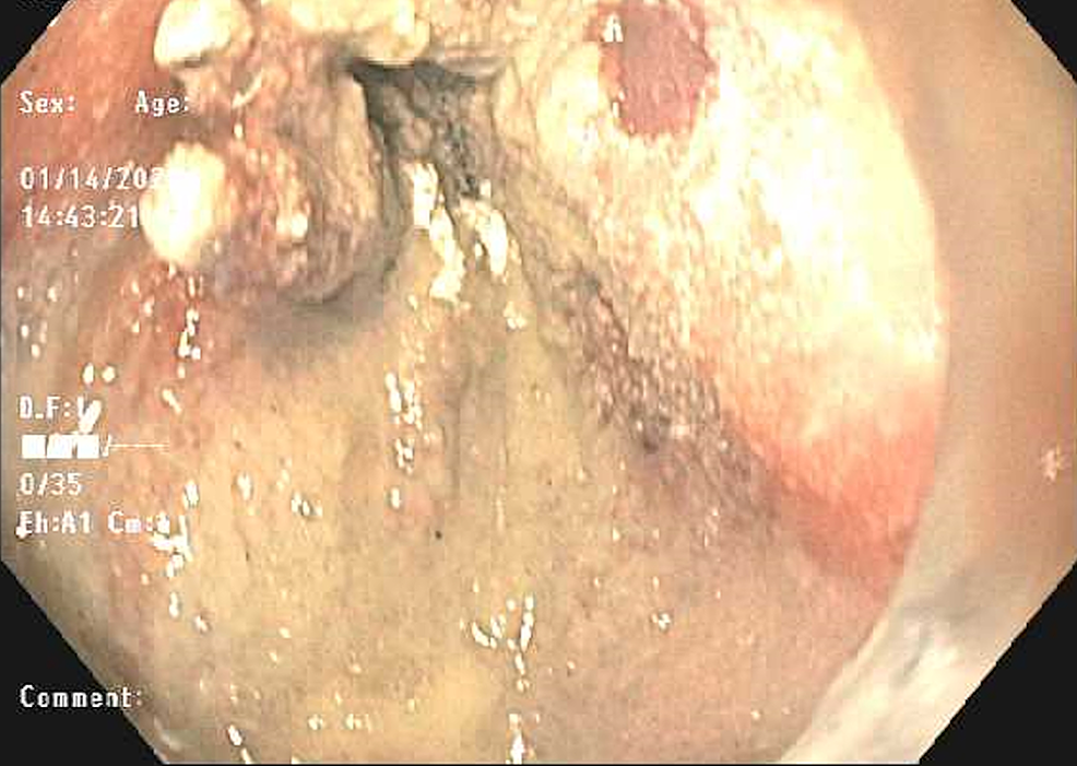 Endoscopic-view-of-the-site-of-Dieulafoy-lesions-after-application-of-Hemospray-and-successful-hemostasis