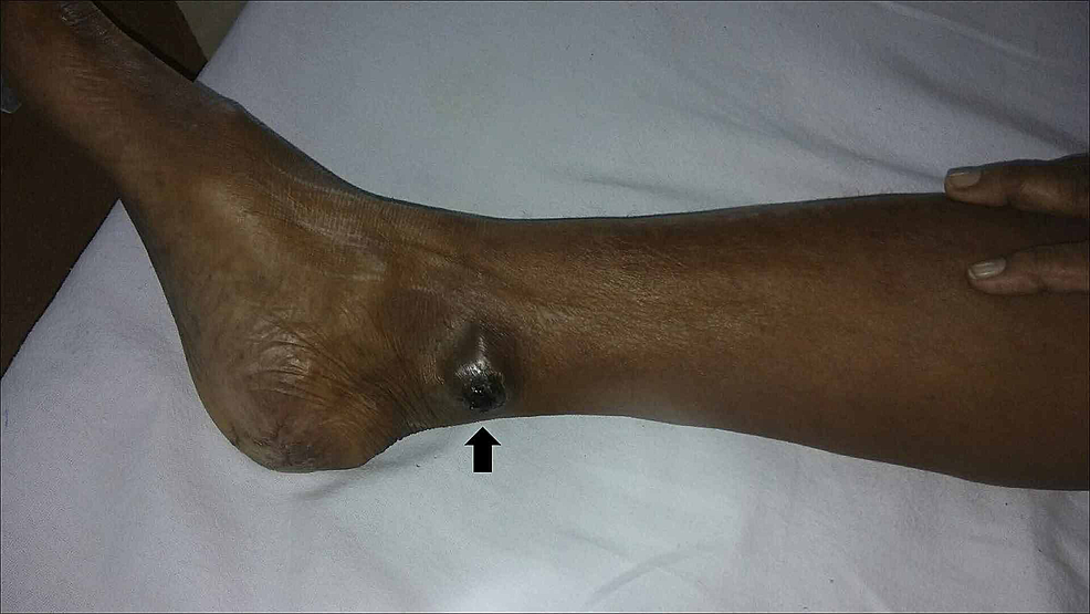 Clinical-picture-of-malignant-melanoma-in-the-right-leg-(primary-site---black-arrow).