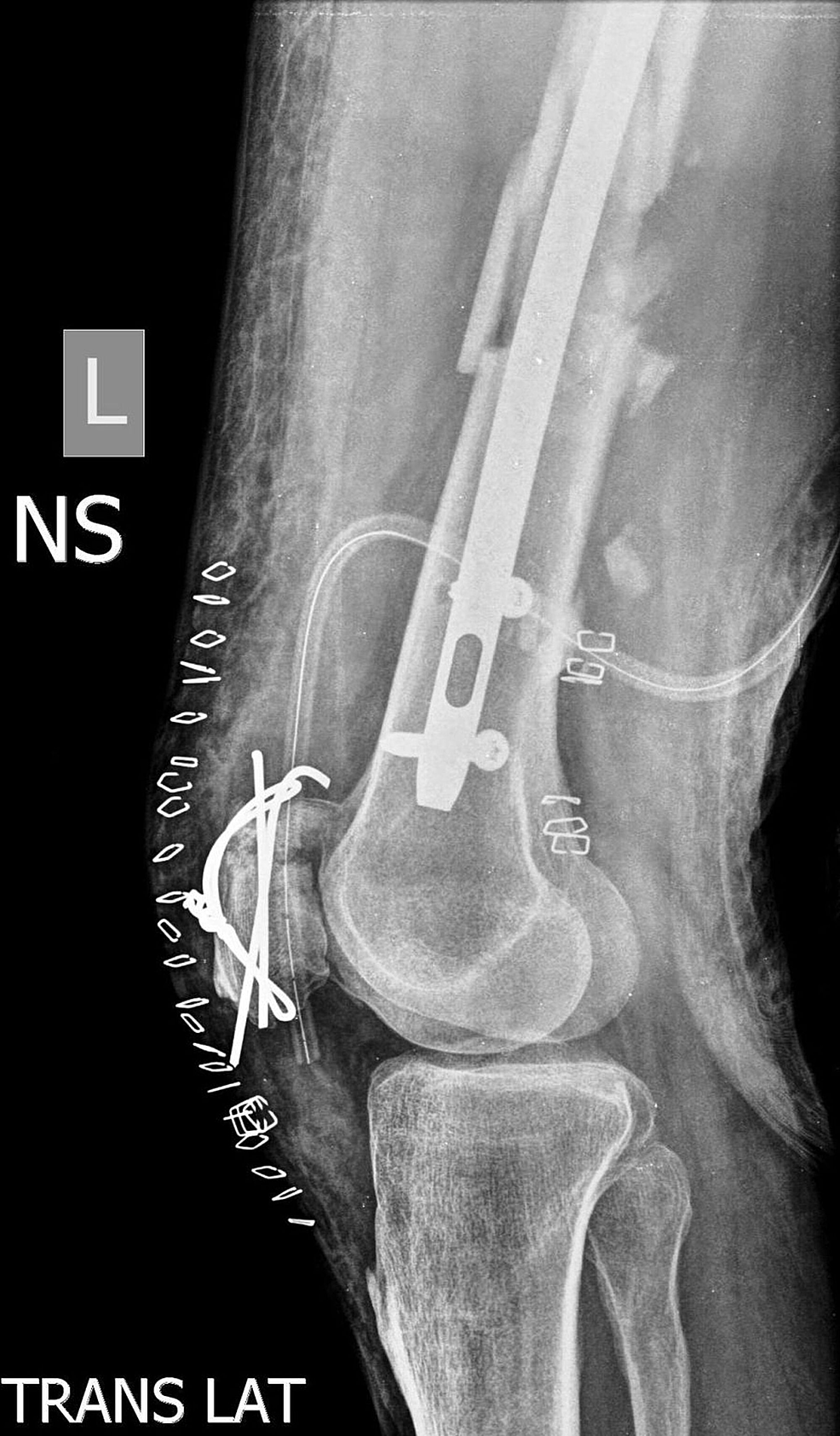 Figure 4 Immediate post-op lateral x-ray of the knee showing patella fracture fixed with tension band wiring : tension band wiring - yogabreezes.com