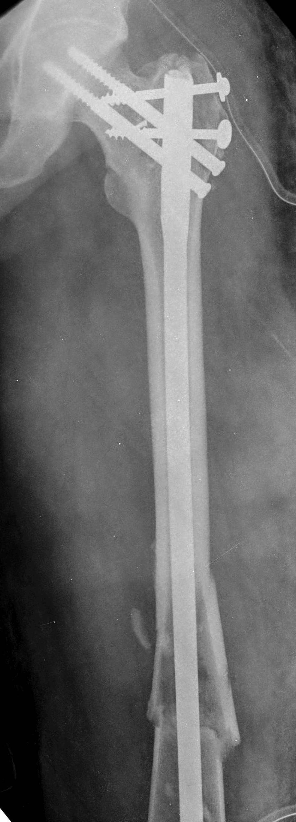 Six-months-post-op-x-ray-of-the-left-femur-showing-union-of-the-left-trochanteric-and-femoral-shaft-fracture