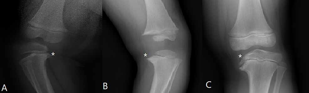 X-rays-demonstrating-an-example-of-Types-A,-B,-and-C-according-to-the-LaMont-et-al.-classification-for-Blount's-disease
