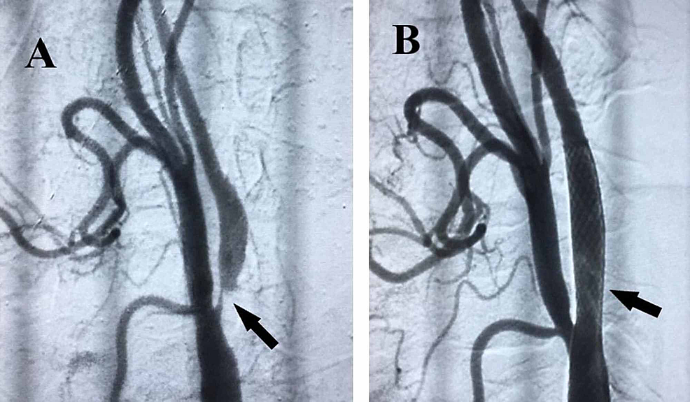 Angiographies-of-right-internal-carotid-artery.