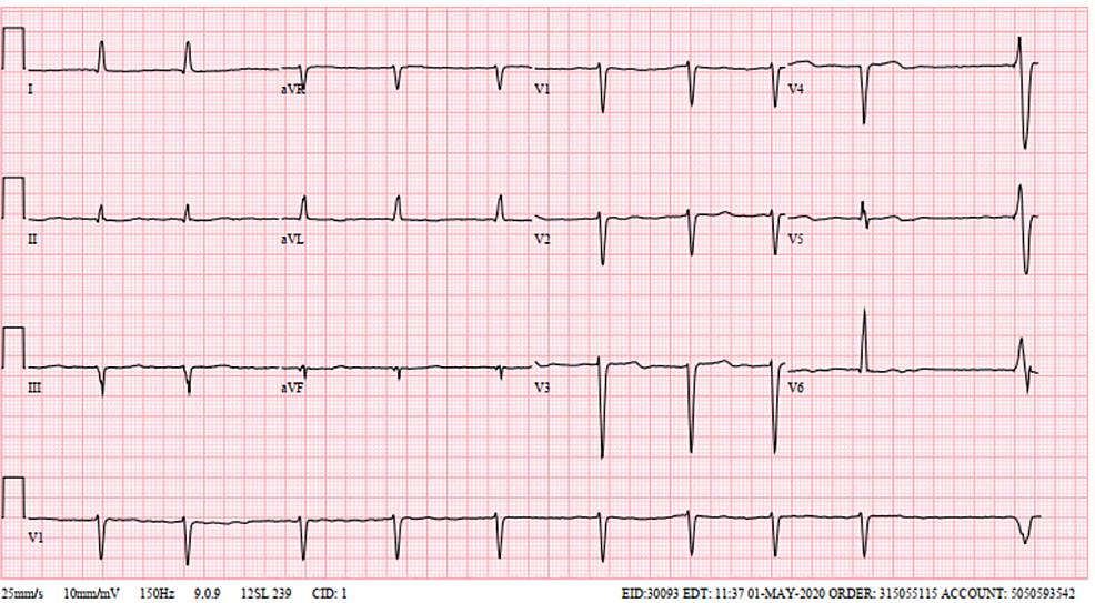 Electrocardiogram-showing-irregularly-irregular-rhythm-consistent-with-atrial-fibrillation