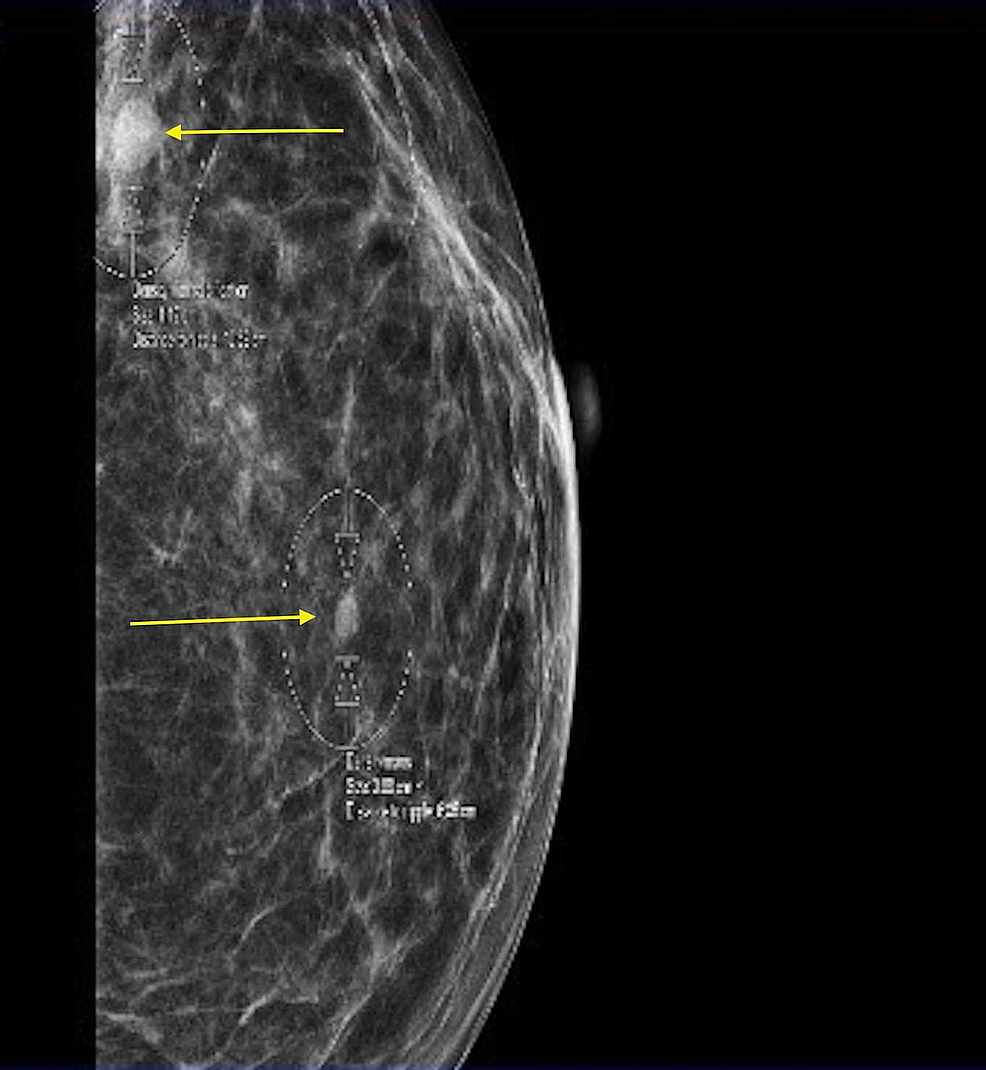 Mammogram-of-the-left-breast