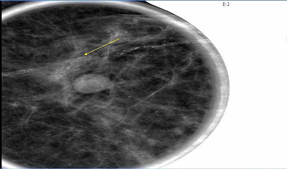 :-Mammogram-of-the-left-breast