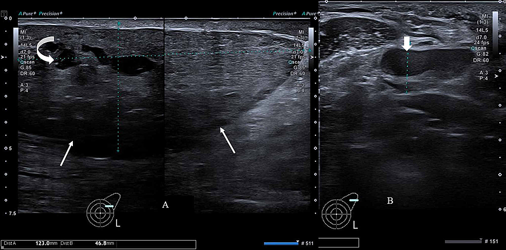 Gray-scale-ultrasound-image-of-left-breast-and-axilla