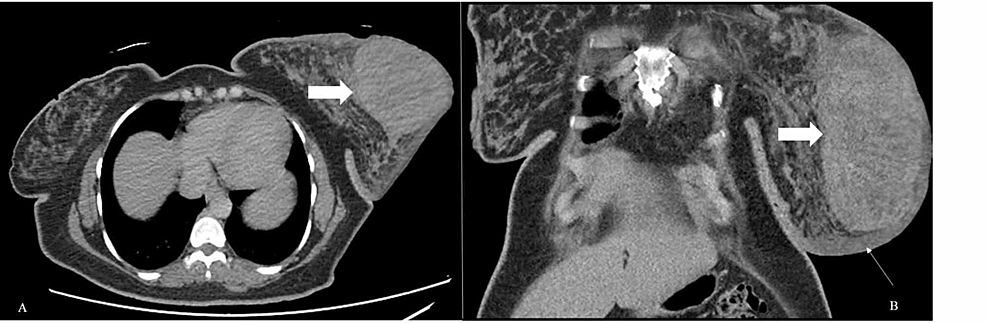 Contrast-enhanced-CT-scan