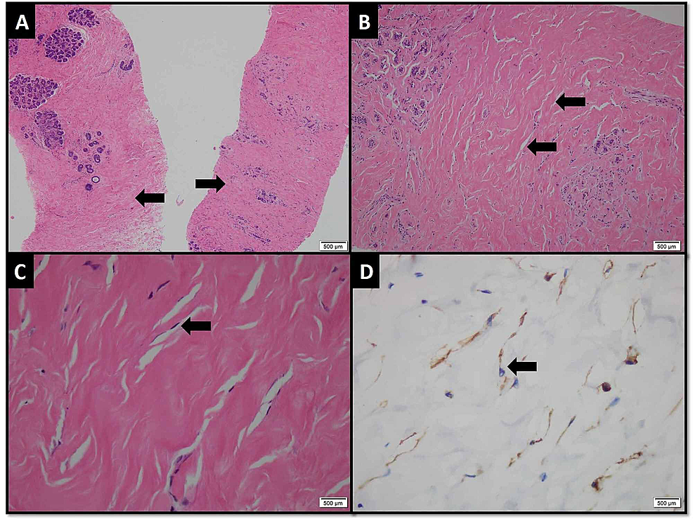 Photomicrograph-(H&E-and-immunohistochemical-stain)