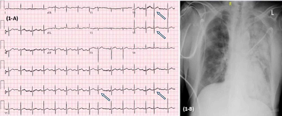 EKG-(A)-showing-sinus-rhythm-with-premature-atrial-complexes-(arrows)-with-ventricular-rate-99-bpm,-with-nonspecific-T-wave-abnormalities,-normal-QT/QTc-interval-374/457-ms.-CXR-(B)-section-showing-increased-left-lung-multifocal-consolidations-concerning-pneumonia.