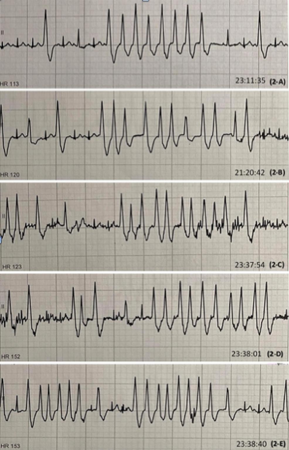 EKG-rhythm-strips-showing-multiple-episodes-of-NSVT.