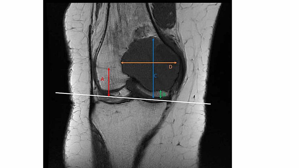 Radiological-measurements