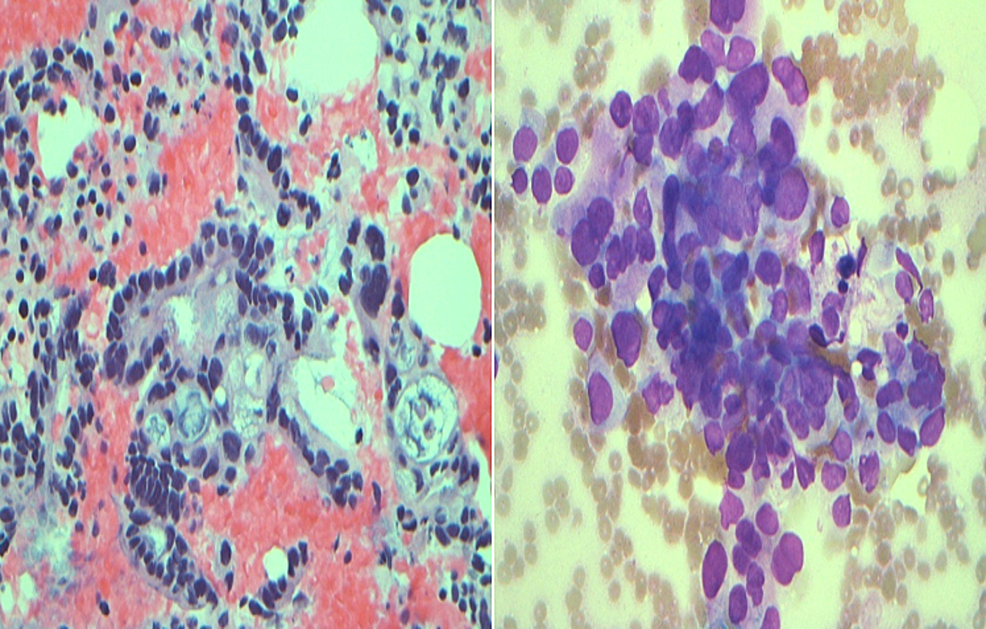 (Left):-40X-Hematoxylin-and-Eosin-stained-cell-block-showing-clusters-of-malignant-cells-with-cytological-atypia-including-variation-of-nuclear-size-and-shape-and-irregular-nuclear-contours-consistent-with-adenocarcinoma.-(Right):-40X-Diff-quick-stained-smear-showing-clusters-of-malignant-cells-with-cytological-atypia-including-crowding,-nuclear-overlapping,-variation-in-size-and-shape-of-the-nuclei-and-irregular-nuclear-contours-consistent-with-adenocarcinoma.