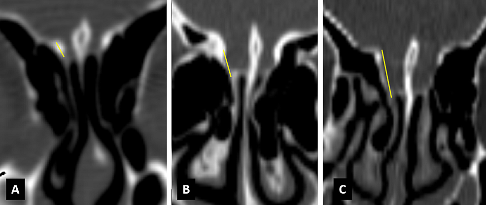 Coronal-CT-images-showing-Keros-classification