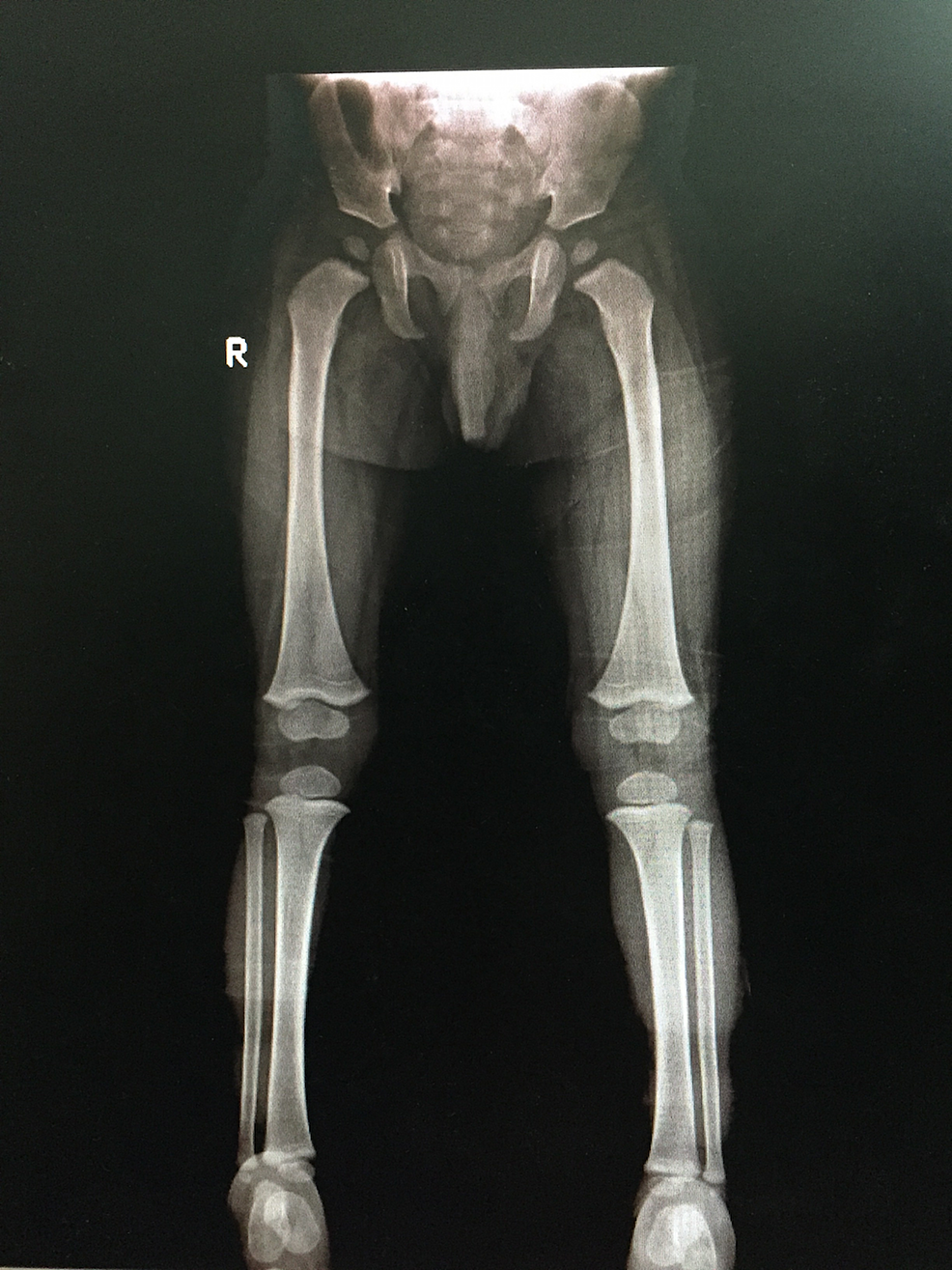Anteroposterior-(AP)-view-of-bilateral-lower-limbs