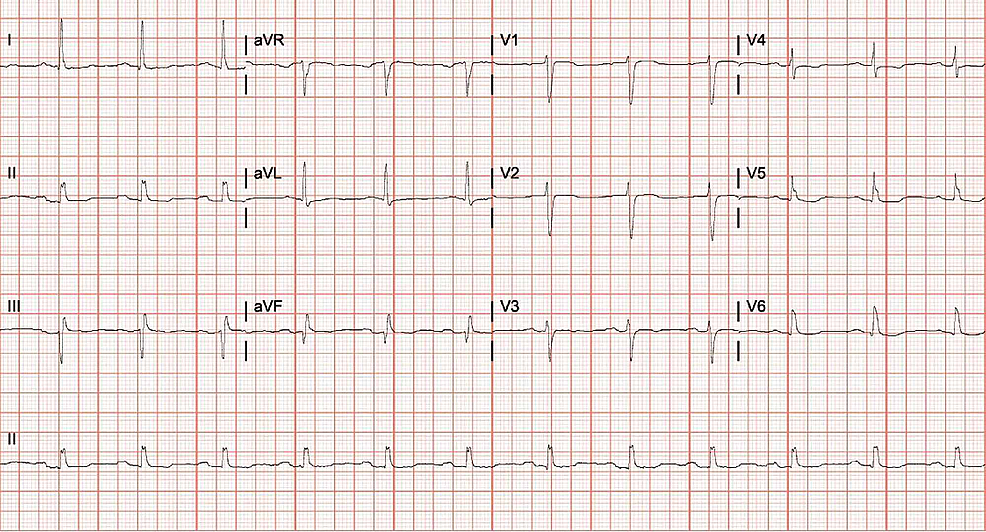 Electrocardiogram-(EKG)