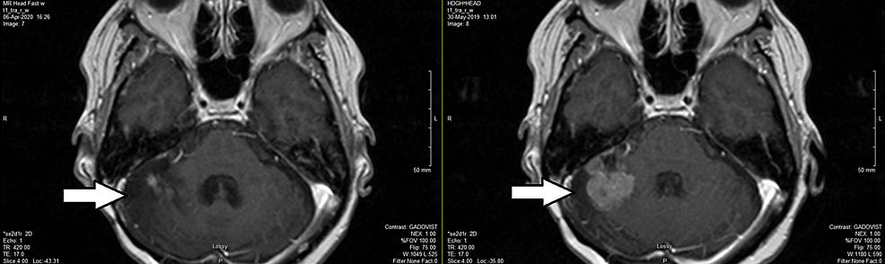 Brain-MRI-eight-months-after-HSRT-(left)-versus-two-months-before-HSRT-(right)