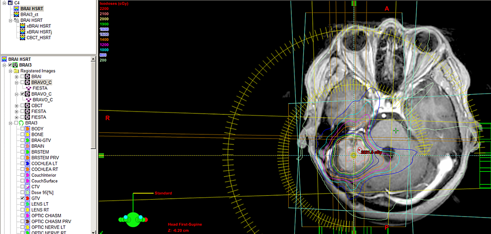 HSRT-plan-on-MRI-simulation-imaging-fused-with-CT