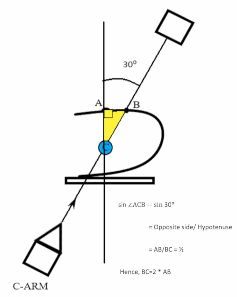 With-the-fluoroscopy-at-thirty-degrees,-point-B-is-marked-on-the-skin-overlying-the-target-calyx-C-forming-a-right-angled-triangle