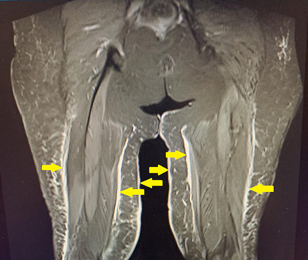 MRI-of-the-hip-and-thigh-showing-multi-focal-myositis-of-the-adductor-longus.