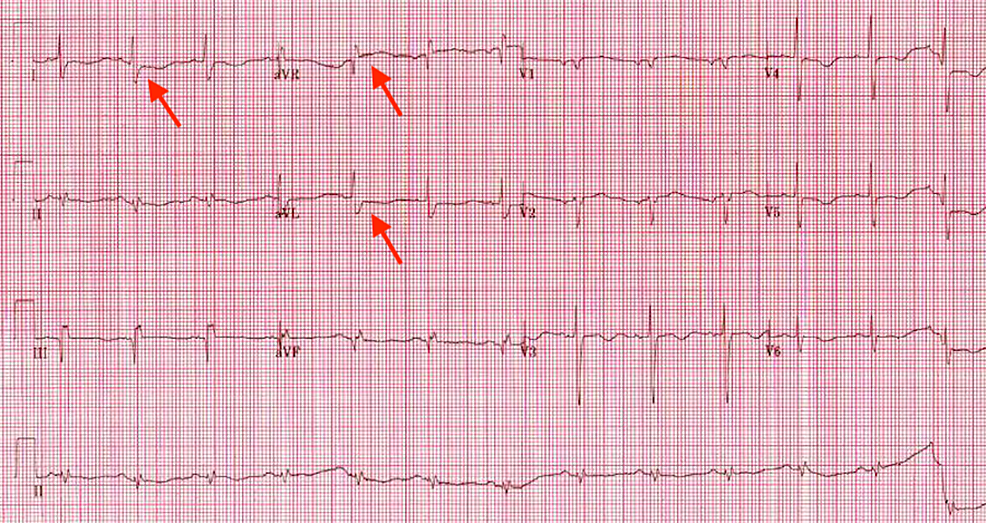 Electrocardiogram-revealed-ST-segment-elevation-in-lead-aVR-and-ST-segment-depression-in-I,-aVL-with-T-wave-inversion-in-multiple-leads.