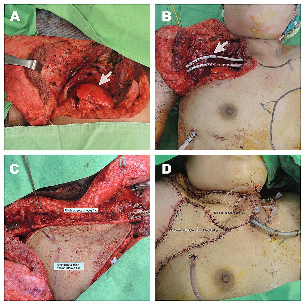Complex-chest-wall-reconstruction.