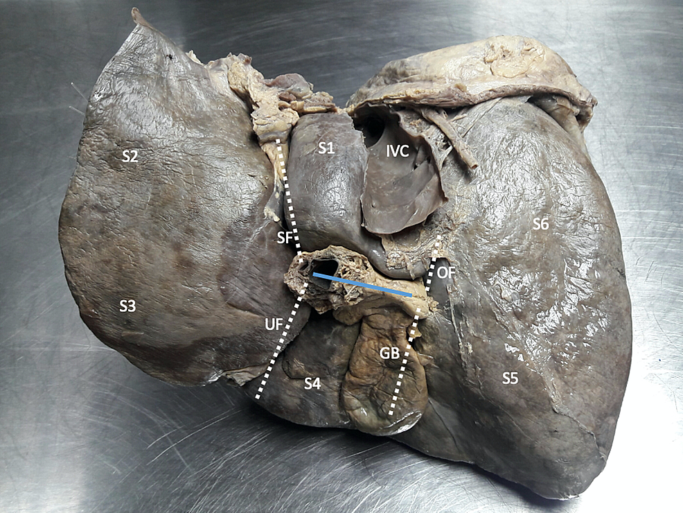 A-view-of-the-visceral-surface-of-an-explanted-cadaveric-liver-illustrating-classic-anatomy